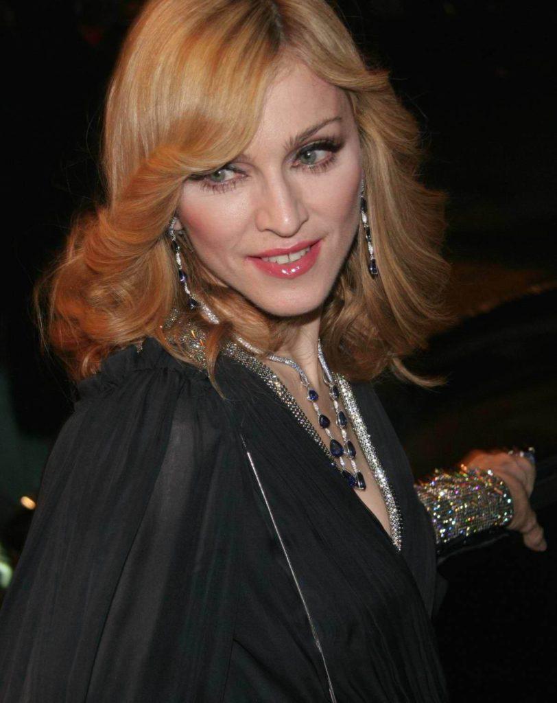 Madonna_Lyiza_Chiccone_esteticheskaya_medicina